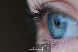 12 علل تاری دید ناگهانی   پزشکت