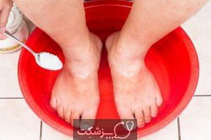 چگونه قارچ ناخن پا را درمان کنیم؟ 2   پزشکت
