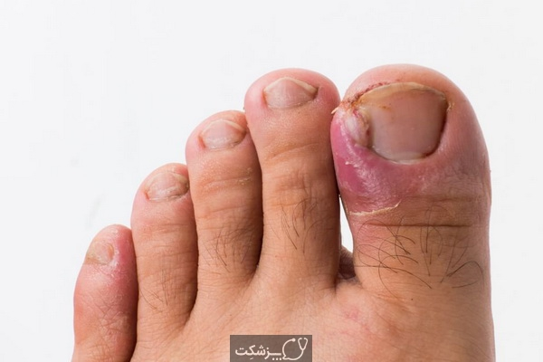 چگونه قارچ ناخن پا را درمان کنیم؟ 1   پزشکت