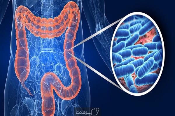 پروبیوتیک ها، از تعریف تا سوالات رایج | پزشکت
