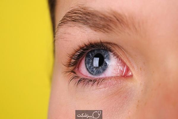 تاری دید در یک چشم || پزشکت