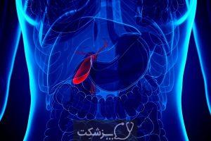 درد کیسه صفرا، شایع ترین علل و درمان آن | پزشکت