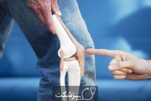 سندرم محفظه ناشی از ورزش مزمن | پزشکت
