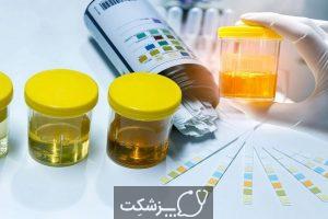 پنی سیلامین چیست؟ | پزشکت