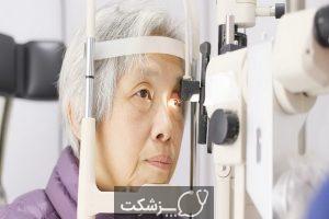 دژنراسیون خشک ماکولا چیست؟   پزشکت