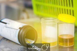 آزمایش 24 ساعته پروتئین ادرار | پزشکت