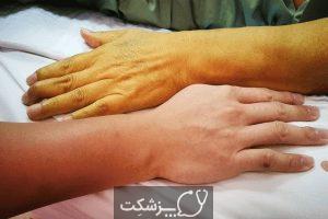 سرطان مجاری صفراوی، از علل تا راهکارهای درمانی   پزشکت