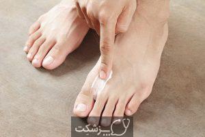 12 علل اصلی خارش قوزک پا   پزشکت