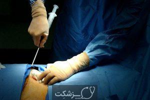 پیوند سلول های بنیادی خونساز | پزشکت