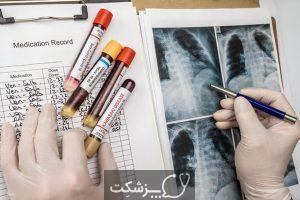 آزبست و خطر بیماری های ریوی | پزشکت
