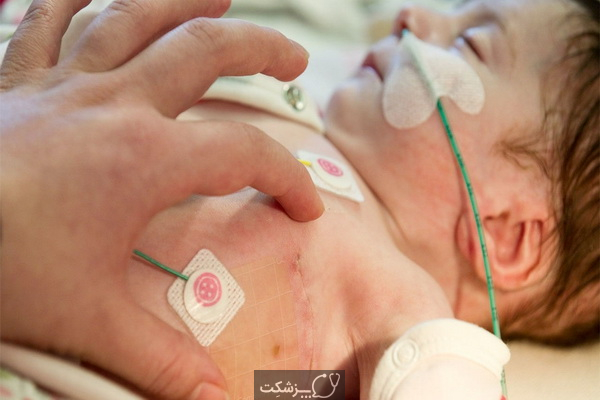 نارسایی قلبی در کودکان | پزشکت
