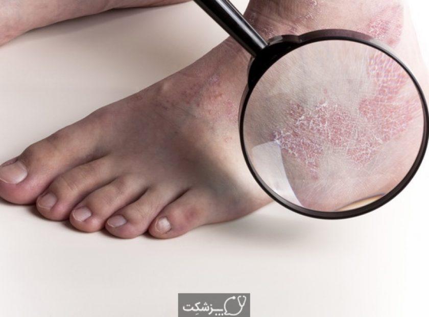 Medical Exam on Foot