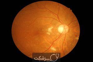 فشار خون بالا چشمی چیست؟ | پزشکت