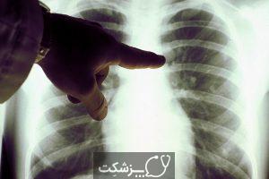 سرطان ریه در نوجوانان | پزشکت