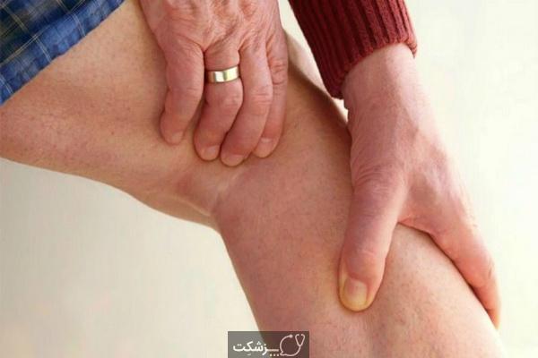 علت درد پشت زانو چیست؟   پزشکت