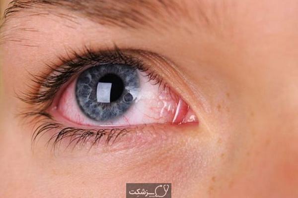 درمان لکه های شناور چشمی چیست؟   پزشکت