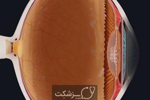 اختلال بیش فعالی و تاثیر آن بر چشم | پزشکت