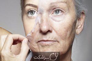 10 روش برای کاهش پیری زودرس پوست | پزشکت