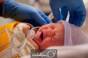 غربالگری شنوایی نوزادان چیست؟   پزشکت