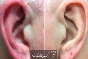 علت درد گوش بیرونی چیست؟ | پزشکت