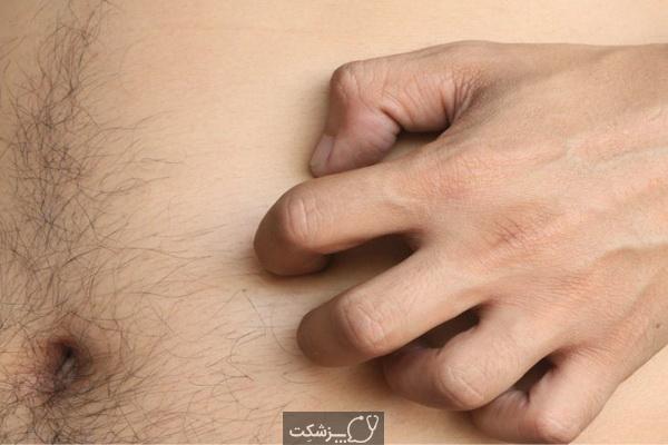 شایع ترین علل خارش شکم چیست؟   پزشکت