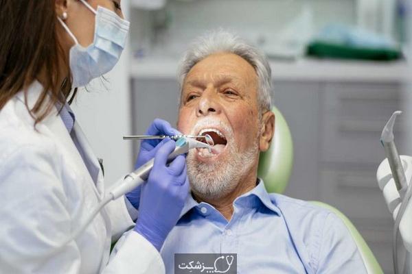 مشکلات دندانپزشکی در سالمندان   پزشکت