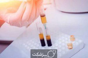 کم خونی فانکونی چیست؟ | پزشکت