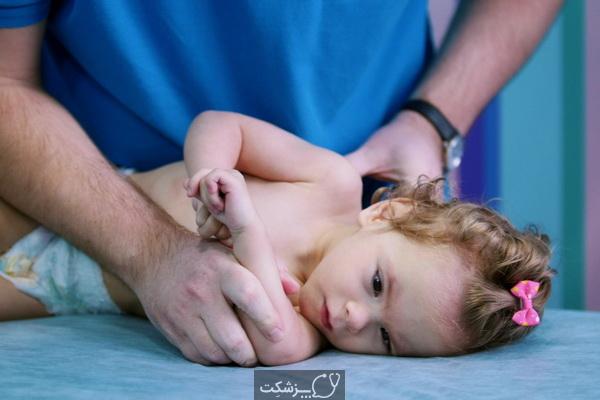 آرتروگریپوزیس چیست؟ علل و علائم آن کدامند؟   پزشکت
