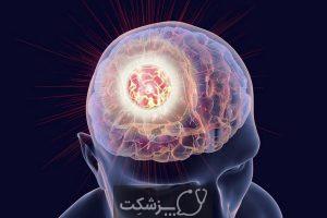 متاستاز مغز چیست؟ چگونه درمان می شود؟ | پزشکت