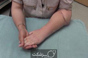 پیوند دست چگونه انجام می شود؟   پزشکت