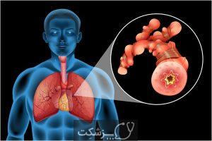 تومور دسموئید چیست؟ آیا نیاز به درمان دارد؟   پزشکت