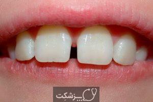 دیاستما یا فاصله بین دندان ها چگونه درمان می شود؟   پزشکت