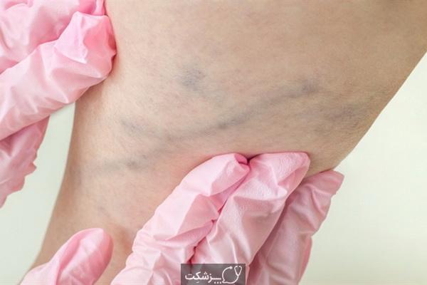 لخته های ساق پا را چگونه از بین ببریم؟   پزشکت