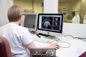 رادیوانکولوژی چیست؟ | پزشکت