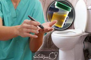 علت بوی بد ادرار، علل و علائم تا درمان | پزشکت