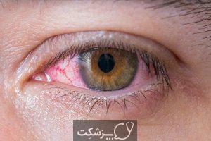 آفتاب سوختگی چشم چیست؟ | پزشکت