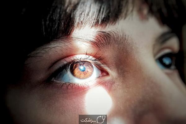 علت حساسیت به نور چیست؟ | پزشکت
