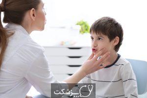 آپراکسی در کودکان | پزشکت