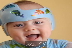 سندرم سر تخت (پلاژیوسفالی): علل، علائم و درمان   پزشکت