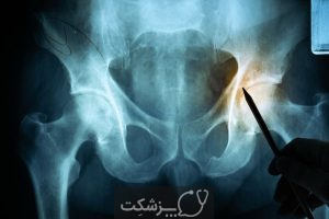 درد کشاله ران، شایع ترین علل تا درمان   پزشکت