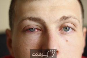 قطره کتورولاک چشمی چیست؟   پزشکت