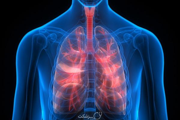 کمبود آلفا -1 آنتی تریپسین چیست؟   پزشکت