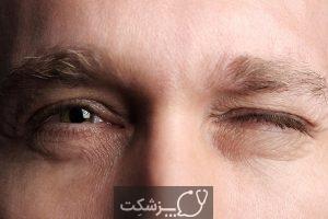 اختلال تیک صورت چیست؟ | پزشکت