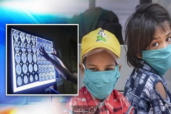 قارچ سیاه در کودکان | پزشکت