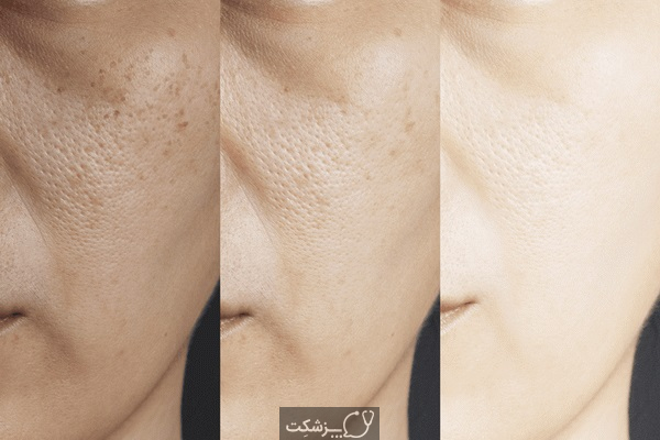 لکه های سیاه روی پوست، علل و درمان خانگی آن   پزشکت