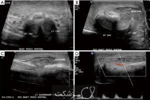 علائم شکستگی آلت تناسلی چیست؟ | پزشکت