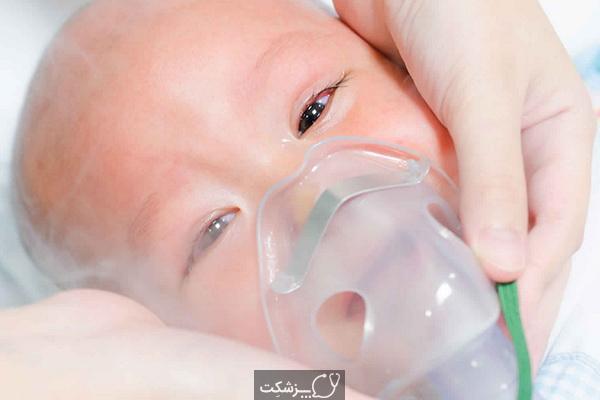 تاکی پنه گذرا در نوزاد تازه متولد شده   پزشکت