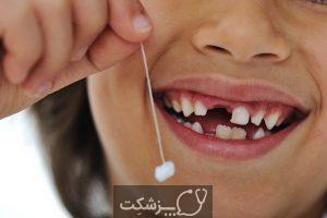 شایع ترین علت لق شدن دندان ها چیست؟   پزشکت