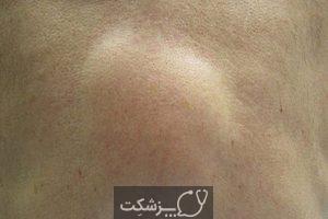 علت توده در قسمت پایین و چپ شکم | پزشکت