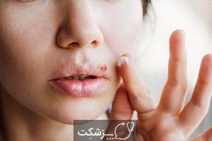 11 علت لرزش لب و راهکار تشخیصی آن | پزشکت